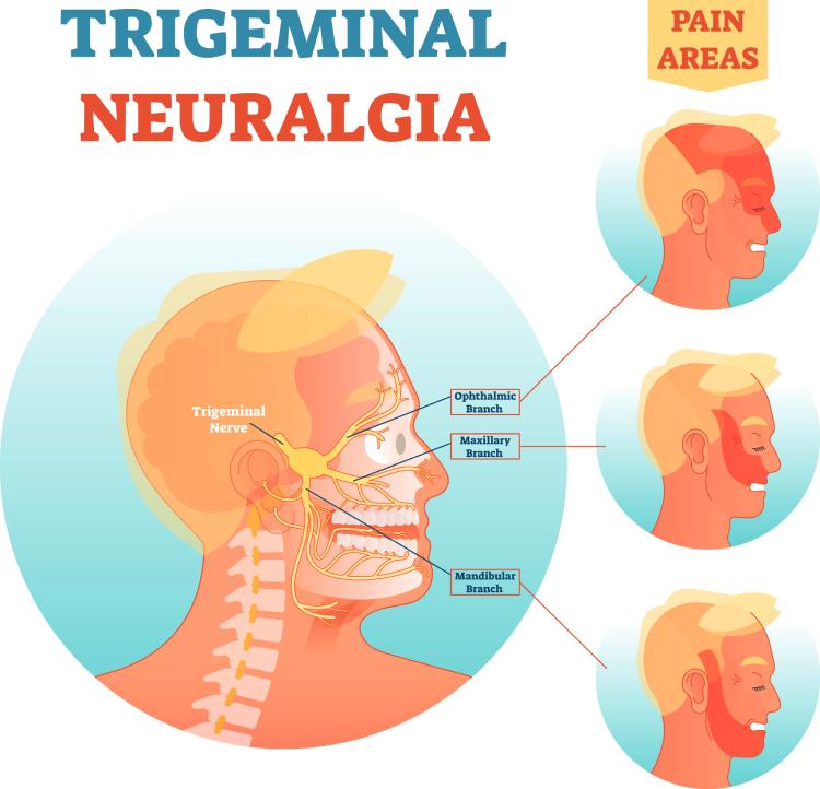 Trigeminus neuralgie